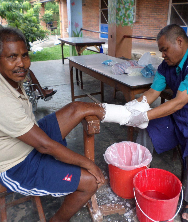 Leprosy care at INF's Shining Hospitals